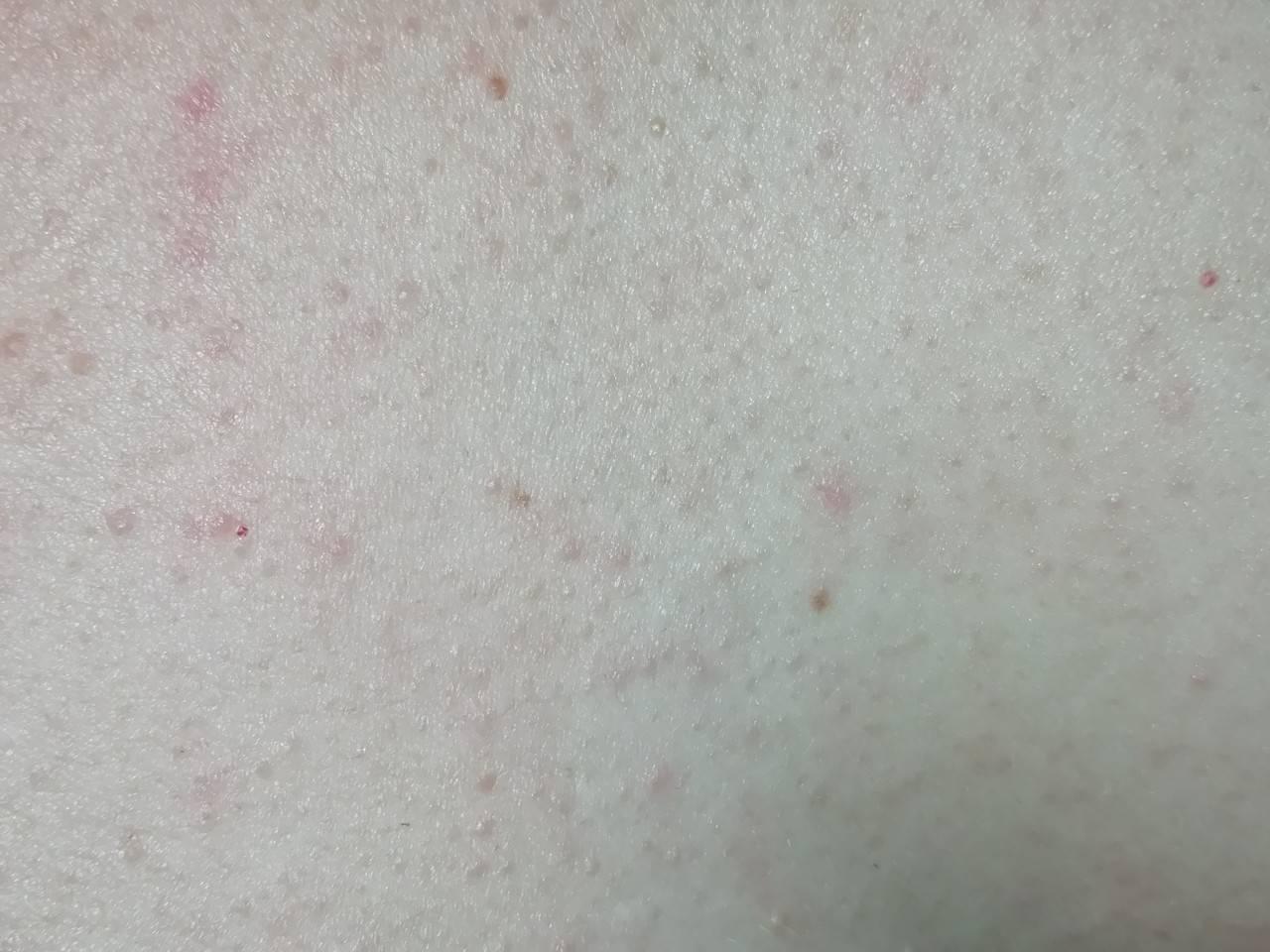 Высыпания на коже при болезнях печени, какие они?