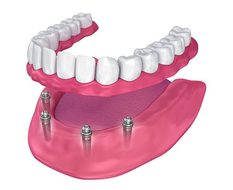Виды зубных протезов – классификация, плюсы и минусы