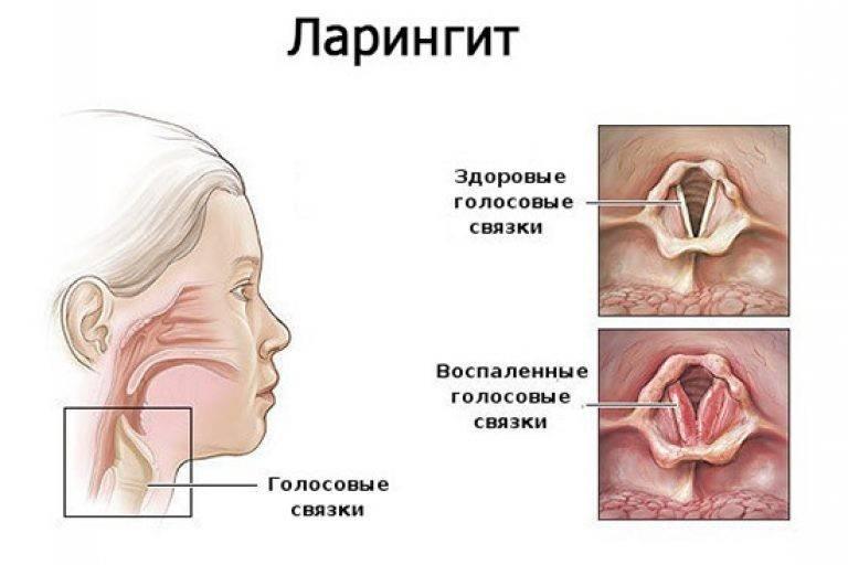 ларингит это инфекционное заболевание