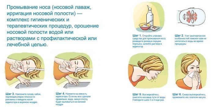 Промывание гайморовых пазух: процедуры и рецепты для домашнего применения