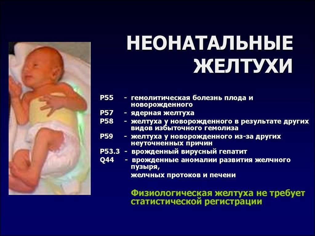 Как вылечить желтушку у новорожденных в домашних