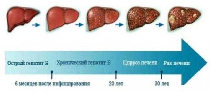 Инкубационный период при гепатите