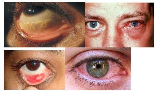 глисты в глазах симптомы