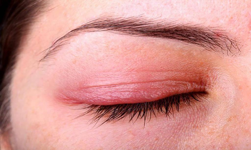 Можно ли заразиться ячменем на глазу