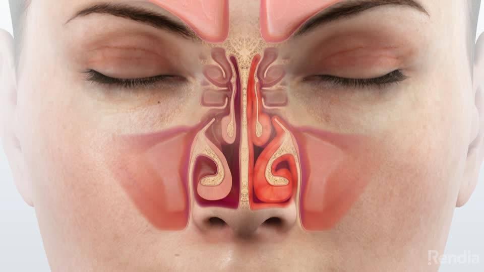 Аллергический синусит – как его определить и устранить симптомы