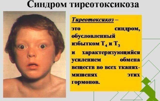 Тиреотоксикоз, что это такое? симптомы и лечение щитовидной железы