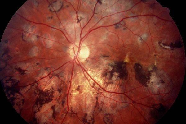 Хориоретинальное воспаление: симптомы, лечение, прогноз — онлайн-диагностика