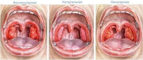 вылечить ангину без антибиотиков