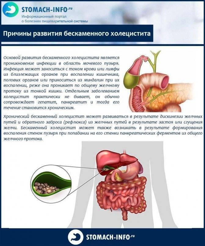 бескаменный холецистит лечение