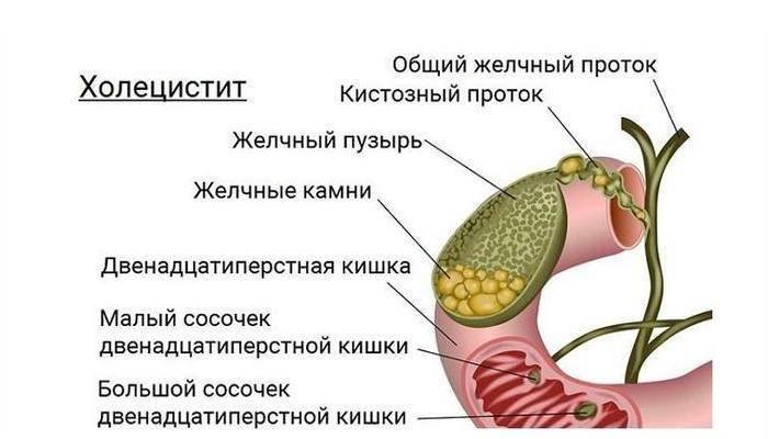 Симптомы и признаки дискинезии желчного пузыря