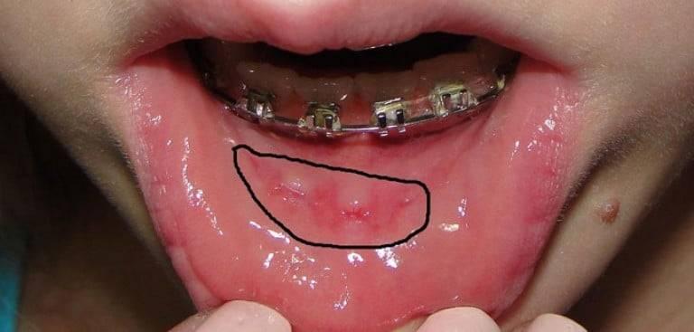 Брекеты: о чём вам не расскажет врач-ортодонт