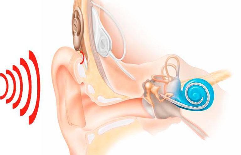 Неврит слухового нерва – острый и хронический. причины, симптомы, диагностика и лечение неврита слухового нерва