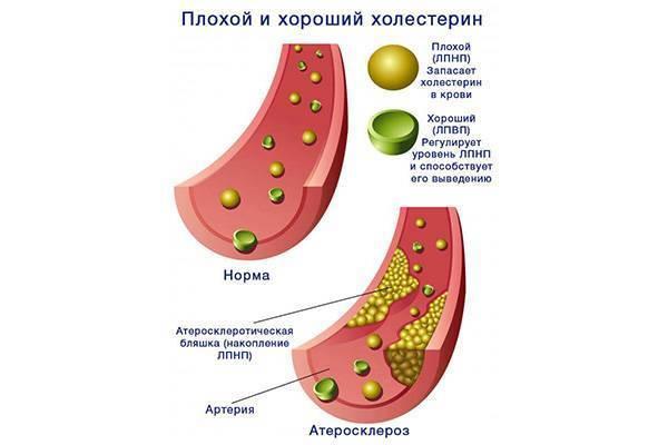 Липопротеиды низкой плотности — лпнп