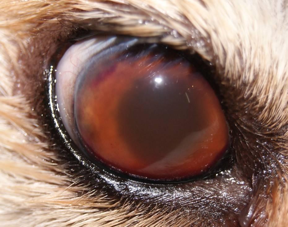 воспаление сосудистой оболочки глаза