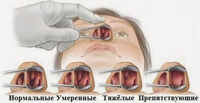 Лечим хронический аденоидит