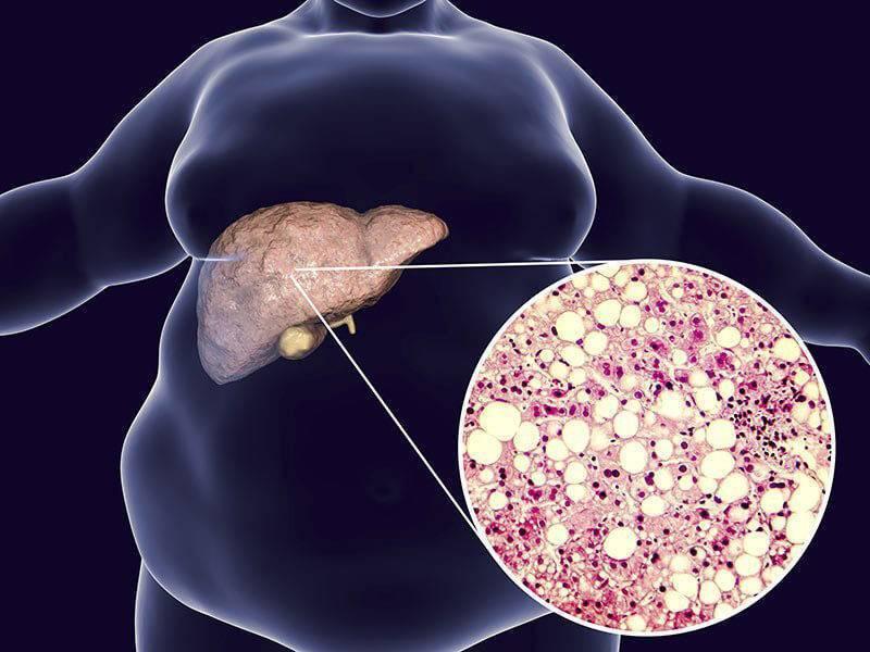 диффузный стеатоз печени лечение