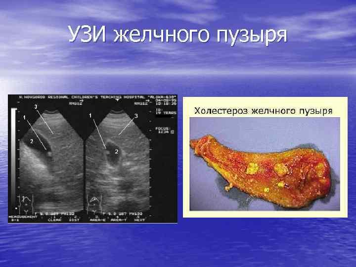 Причины, симптоматика и методы лечения холестероза желчного пузыря