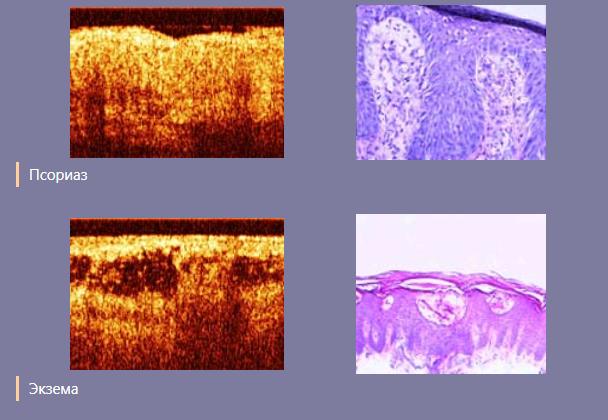 Псориаз: причины, диагностика и анализы