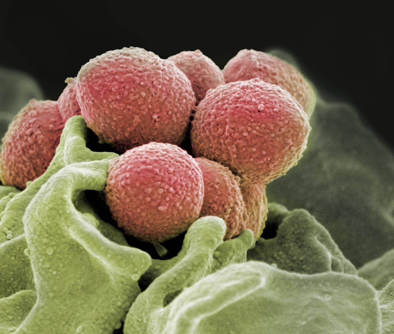 Признаки появления и способы лечения стрептококковой ангины