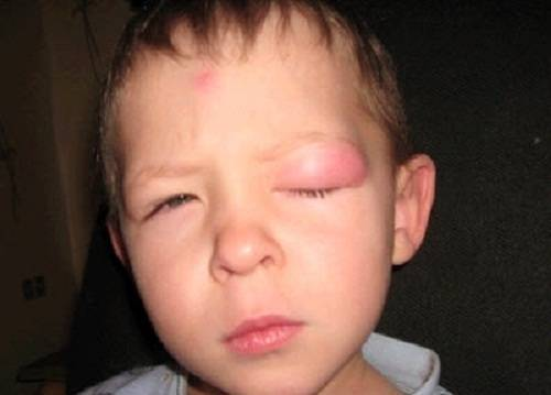 у ребенка опух глаз после укуса комара