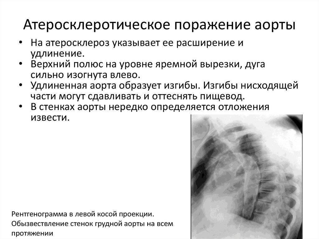 атеросклероз аорты риск 4