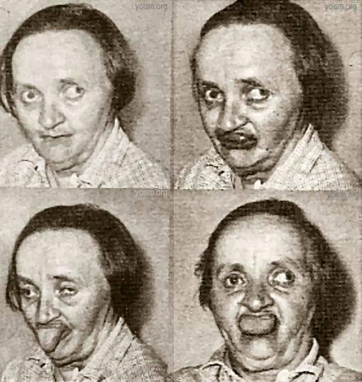 кататония при шизофрении