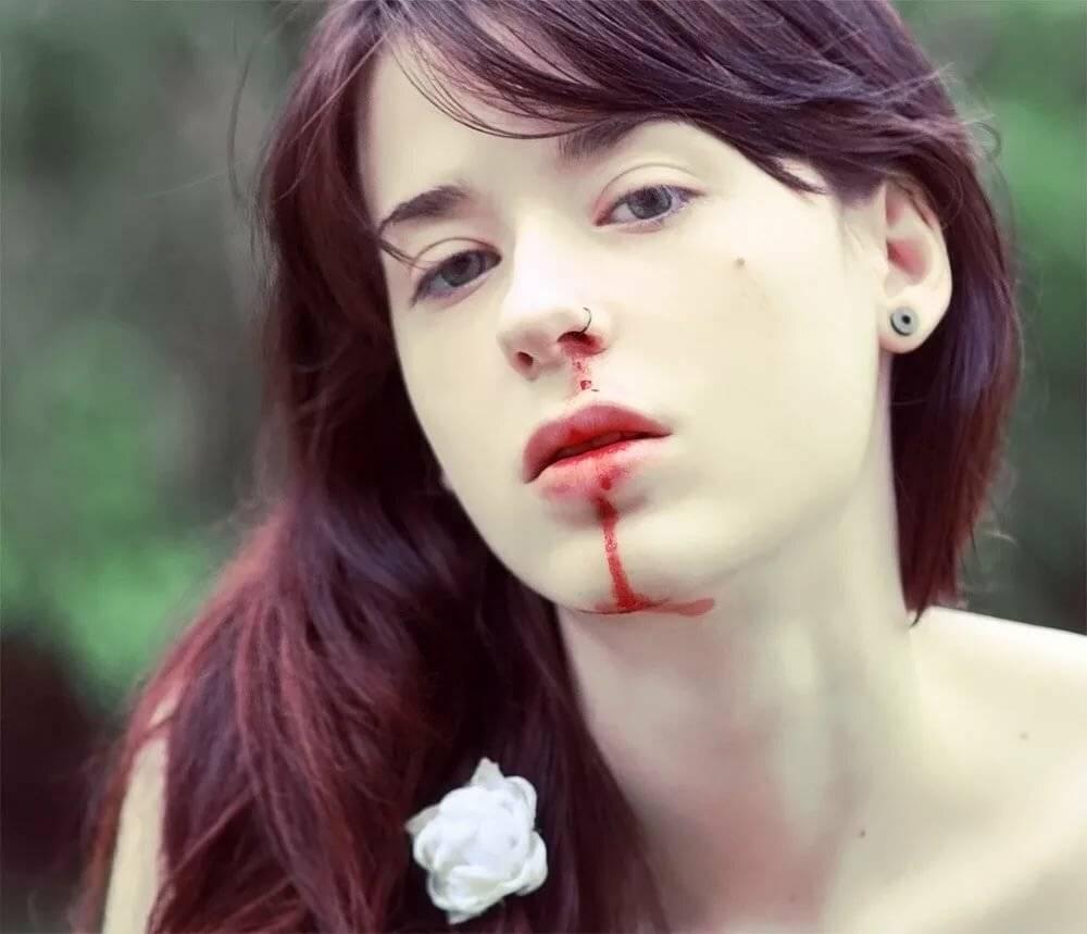 идет кровь идет из носа