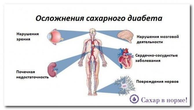 Польза и риски применения статинов при сахарном диабете 2 типа