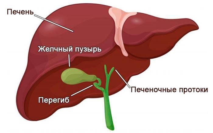 Перегиб желчного пузыря: симптомы, лечение, причины и последствия