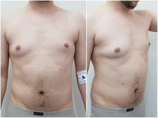 Операция по удалению гинекомастии: показания, ход, результат и реабилитация