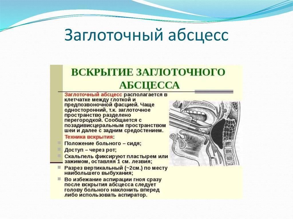 Заглоточный абсцесс. причины, симптомы, признаки, диагностика и лечение патологии