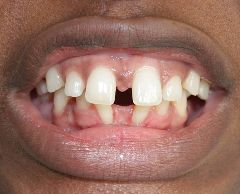 Каким должен быть правильный прикус зубов?