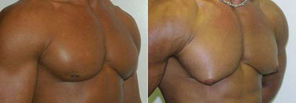 гинекомастия на узи у мужчин