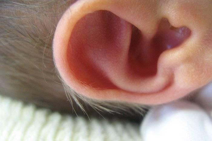 Красное ухо у ребенка. как избавиться от корочек за ушами у грудничка