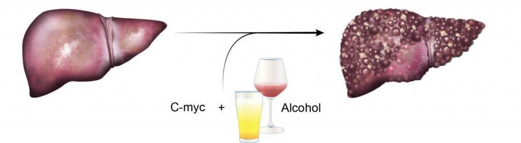 Алкогольный цирроз печени: симптомы, диагностика и лечение