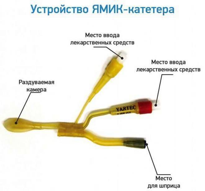 Синус-катетер ямик: описание процедуры, этапы ее выполнения, преимущества и недостатки