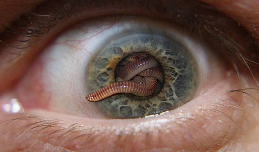 Кожный миаз у человека: что это такое, причины и симптомы инвазии с подробными фото, методы лечения и профилактики