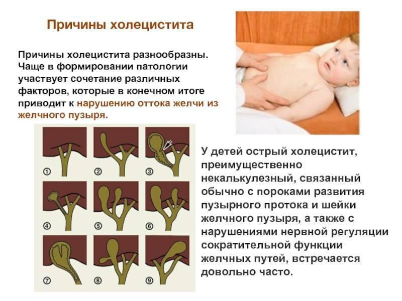 холецистит у детей симптомы и лечение