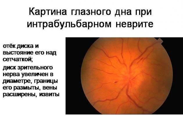Неврит зрительного нерва: симптомы, лечение. ретробульбарный неврит зрительного нерва