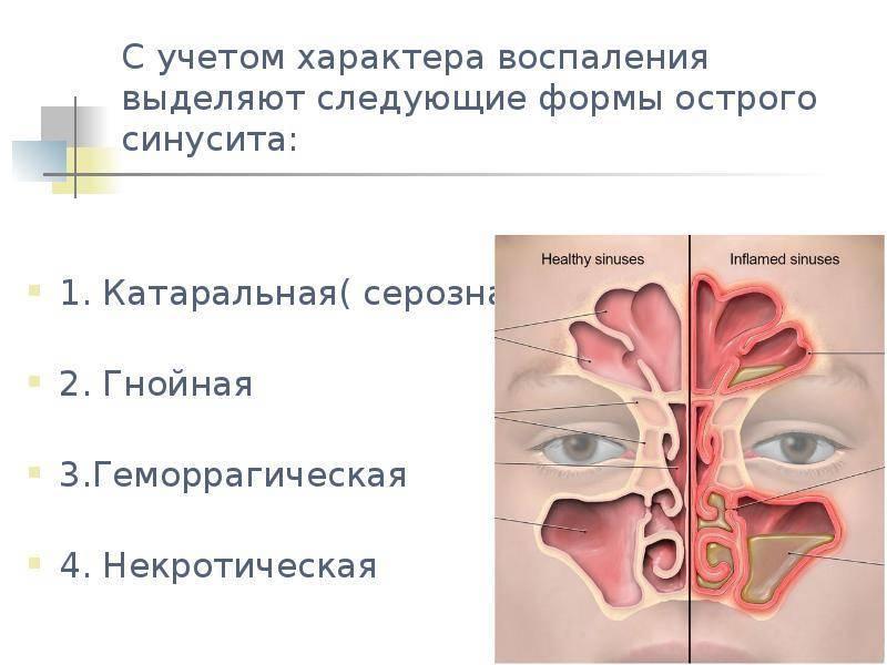 Катаральный синусит: разновидности, причины возникновения и основные симптомы