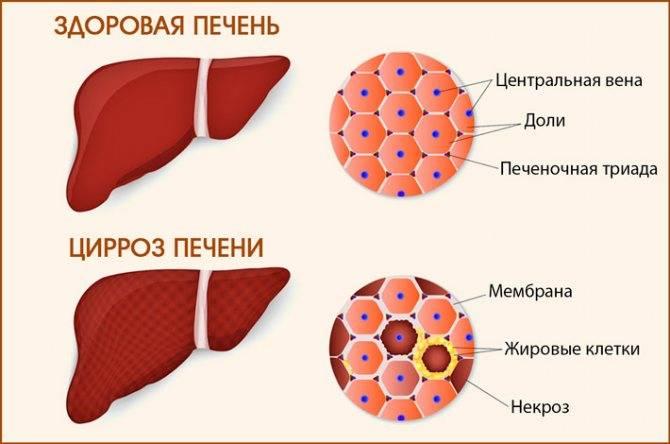 сколько живут с циррозом печени 4 стадии