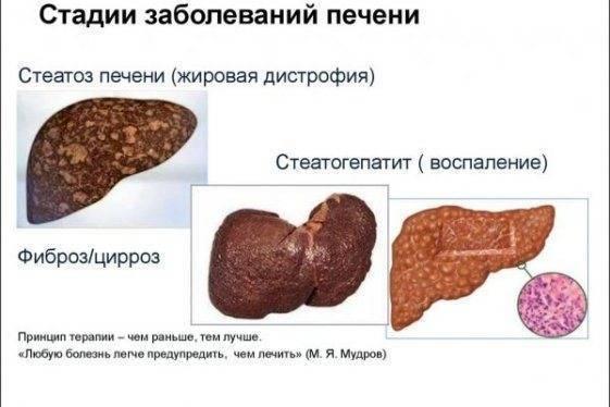 жировой гепатоз печени 1 степени