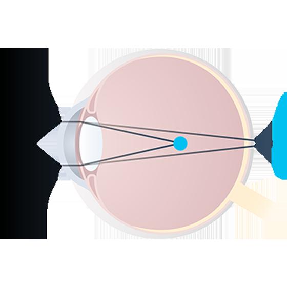 миопический астигматизм обоих глаз
