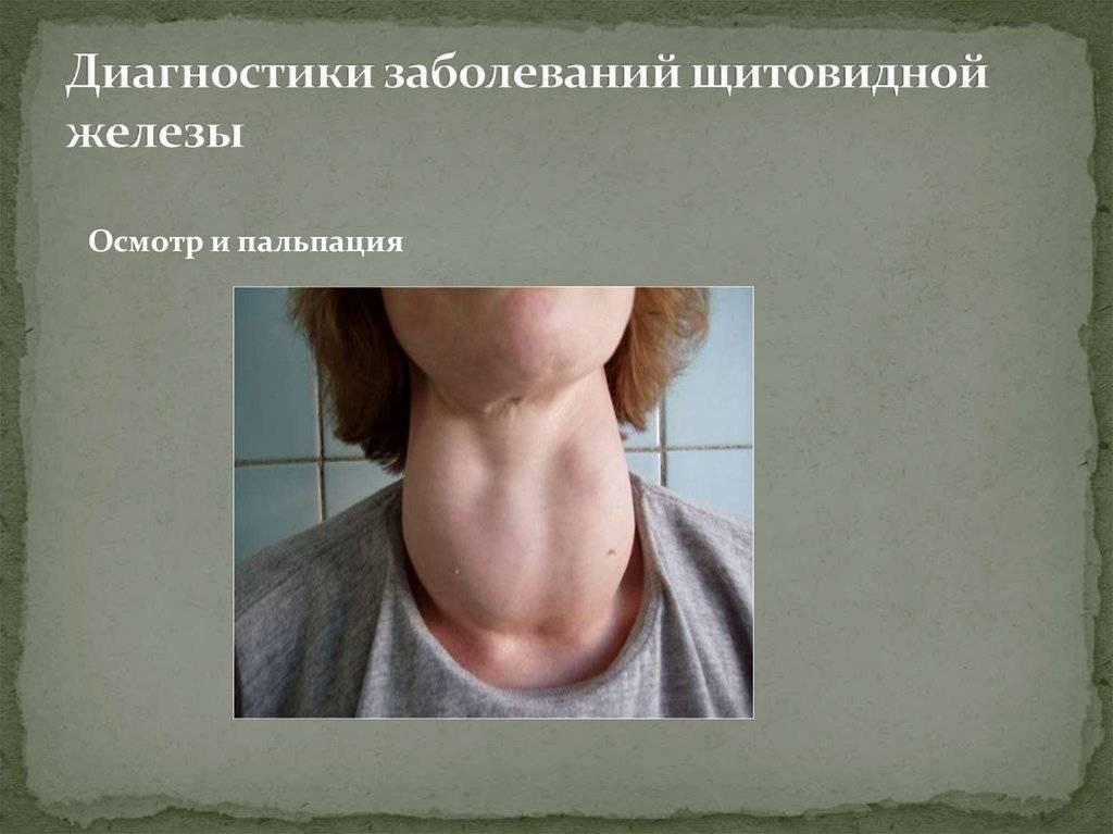 Щитовидная железа симптомы заболевания у мужчин чем лечить