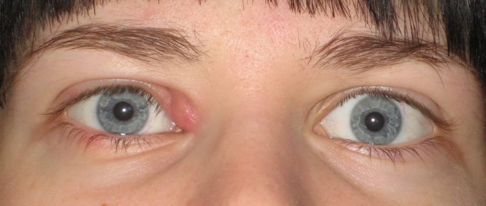 Как лечить чирей на глазу в домашних условиях: мази, антибиотики, народные средства