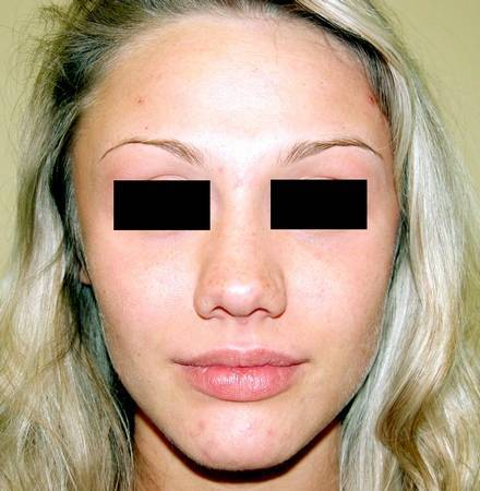 Кольцо в нос для прокола септум или для пирсинга крыла носа: особенности выбора