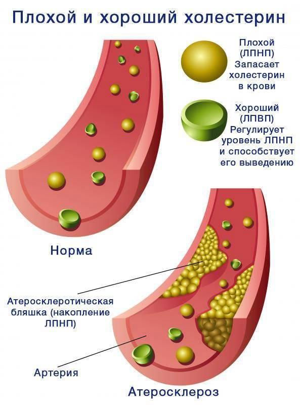 Каким должен быть нормальный уровень холестерина у мужчин старше 60 лет и чем опасны отклонения?