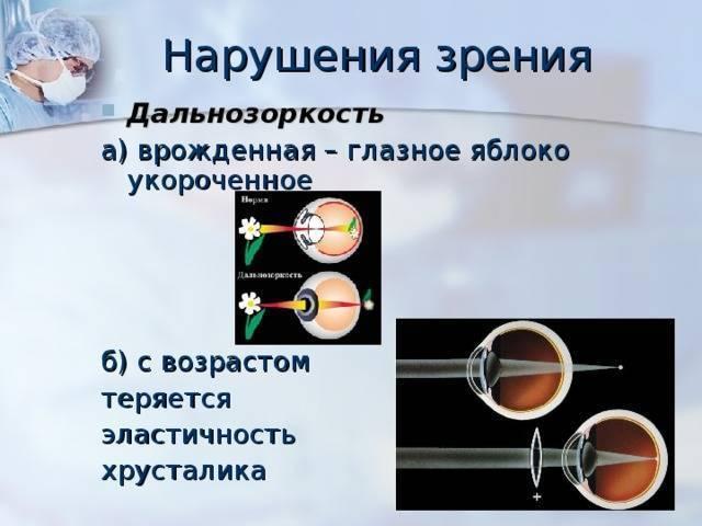 Что такое старческая дальнозоркость — что делать для восстановления зрения