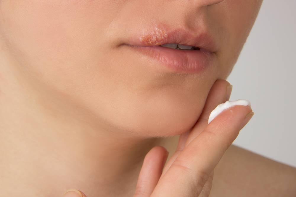 Первые симптомы появления герпеса на губах