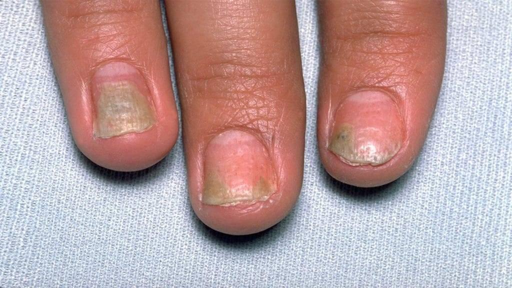Как лечить псориаз ногтей?